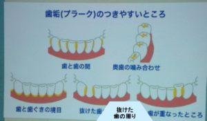 セミナー/歯の磨き方/歯周ポケット/口腔ケア